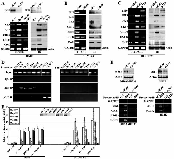 The effect of BRCA1-IRIS and BRCA1/p220 on the expression of several TN/BL markers.