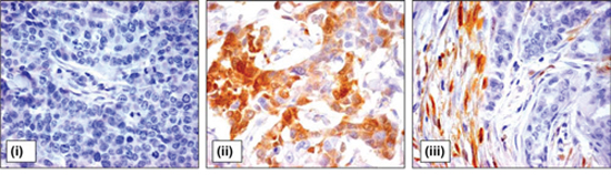 ALDH1 expression in tumor and stromal cells of breast cancer patients.
