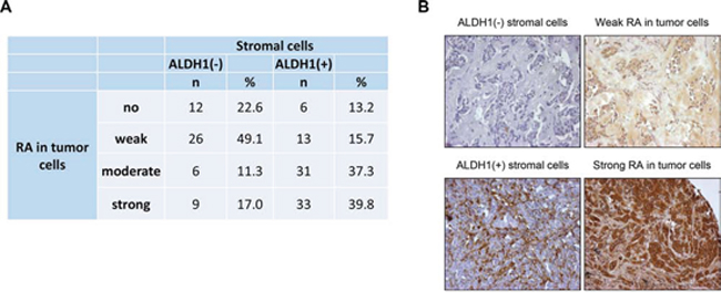 Comparison of stromal ALDH1 staining to presence of retinoic acid in tumor cells.