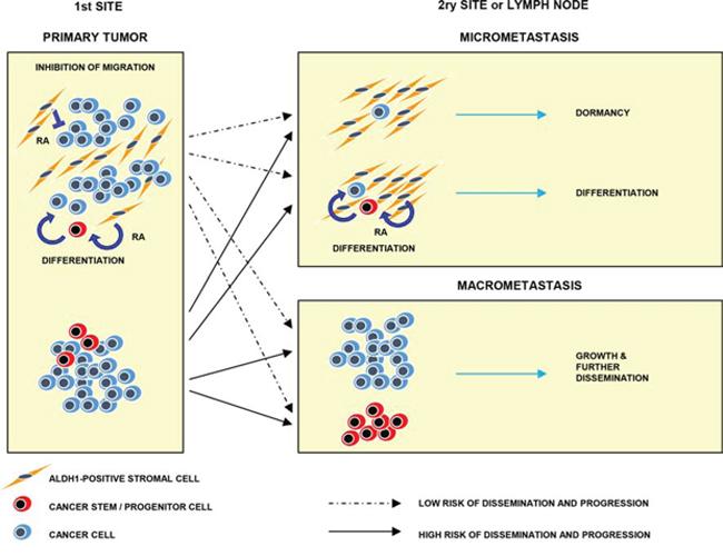 Model of hypothetical involvement of ALDH1(+) stromal cells in tumor progression.
