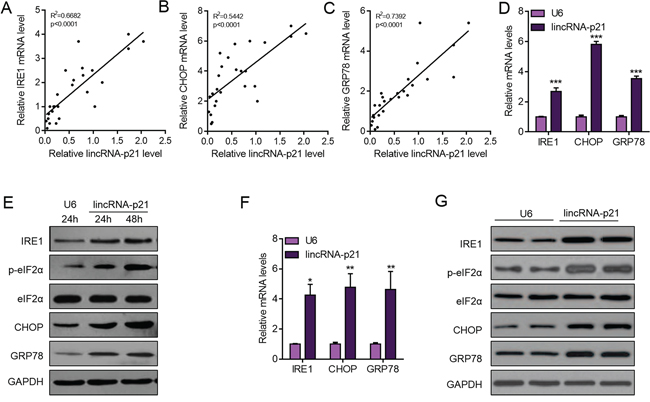 LincRNA-p21 overexpression activates ER stress in hepatocarcinoma.