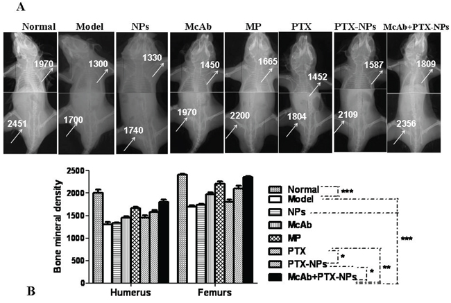 Significant improvement of BMD by McAb+PTX-NPs in MM mice.