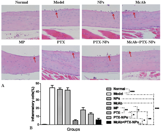 Bone lesion reduction by McAb+PTX-NPs in MM mice.