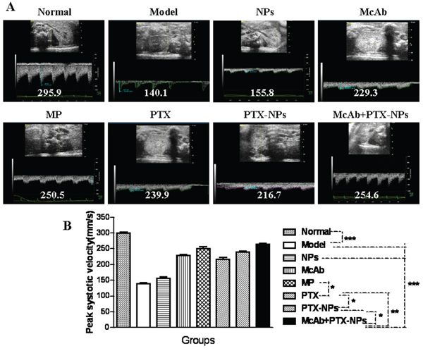 Ultrasound imaging of the BFV of renal arteries in MM mice.