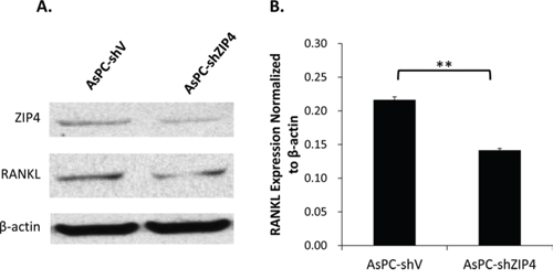 ZIP4 silencing down-regulated RANKL level under zinc-deficient condition.