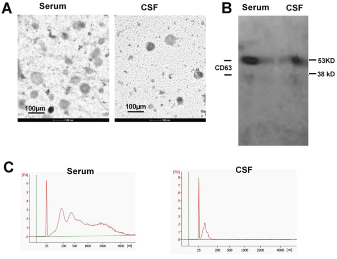 Characterization of the extracellular vesicles.