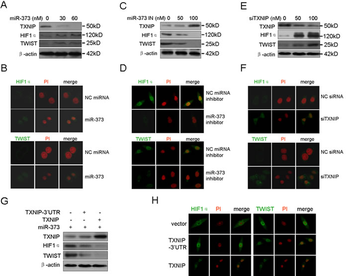 MiR-373 up-regulates and activates HIF1α and TWIST via the TXNIP pathway.