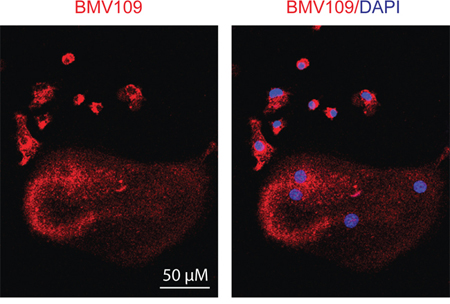 Cysteine cathepsin activity is downregulated in mature osteoclasts compared to macrophage precursors.