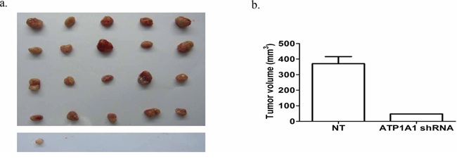 Downregulation of ATP1A1 expression affects the tumorigenicity of MHCC97H cells in vivo.