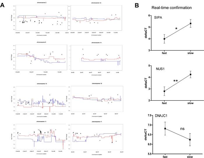 Aneuploidy-driven gene expression deregulation underlies aggressiveness of melanoma xenograft models.