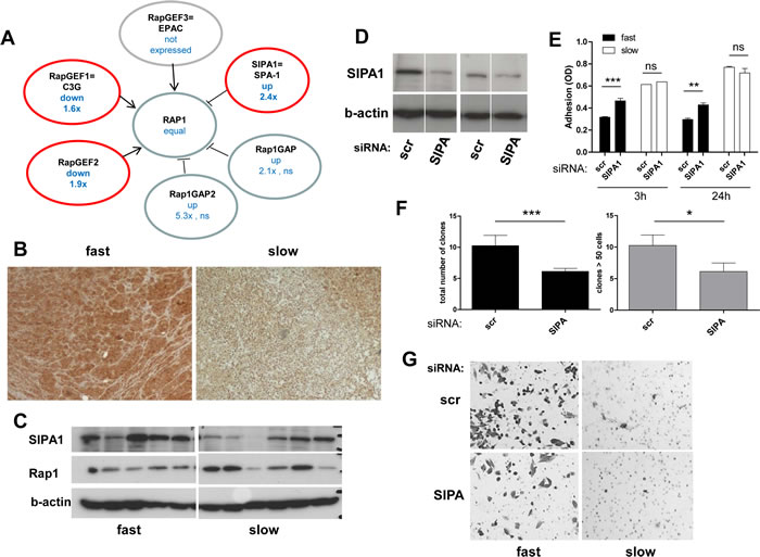 The Rap1 deactivator SIPA1 is gained at the DNA level as well as overexpressed in aggressive melanoma models and impacts on cell behaviour.