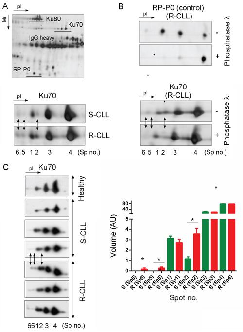 Preferential Ku70 phosphorylation in resistant CLL cells.