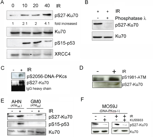 pS27-Ku70 upregulation occurs in CLL cells after IR and involves interaction with pS2056-DNA-PKcs and/or ATM.