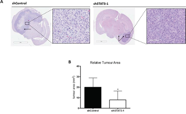 Knockdown of STAT3 demonstrates potential regulatory role in self-renewal and tumor formation.