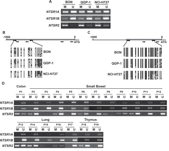 DNA methylation analysis of the NTSR1 and NTSR2 promoters in NETs.