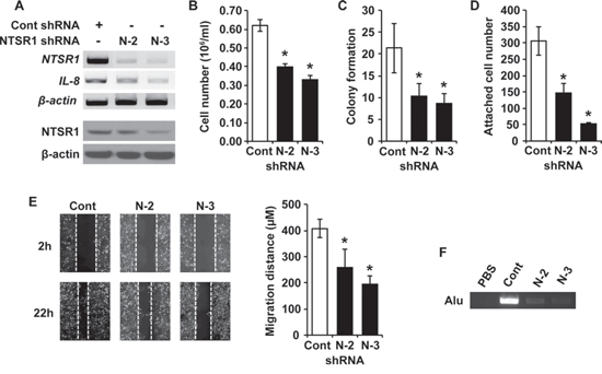 Stable silencing of NTSR1 suppresses cell growth, adhesion, migration and invasion of NET cells.