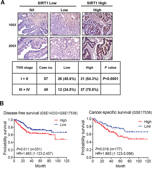 Clinical relevance of SIRT1 expression in CRC.