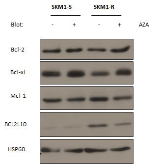 Expression of anti-apoptotic Bcl2 family members in SKM1-sensitive and resistant cell lines.