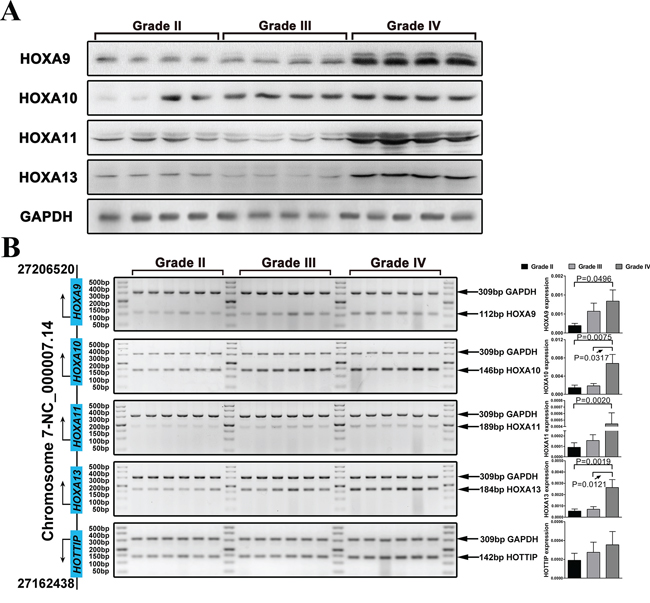 The expression of 5′ HOXA genes is increased in high grade glioma.