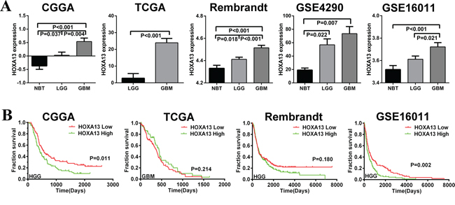 HOXA13 mRNA expression is increased in GBM, and high expression of HOXA13 is associated with poor prognoses in some glioma cases.