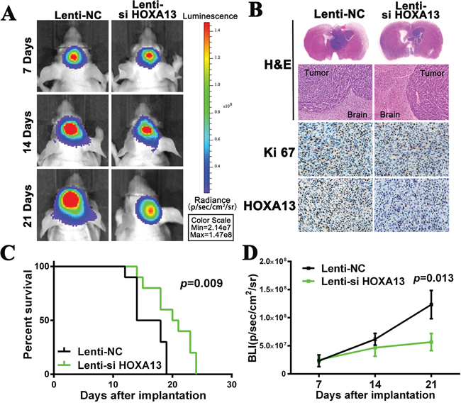 The suppression of HOXA13 inhibits tumor growth and is associated with good prognosis in an intracranial glioma murine xenograft model.