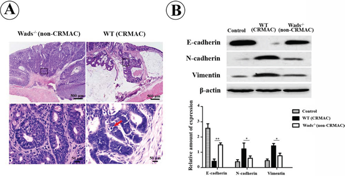 CRMAC in WT mice showed more invasiveness than non-CRMAC in Wads−/− mice did at week 37.