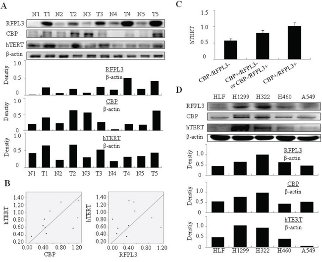 The positive correlation between RFPL3, CBP and hTERT expression in NSCLC cells and tissues.