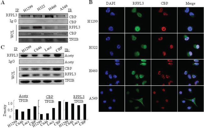 The interaction of RFPL3 with CBP and its acetylation by CBP in lung cancer cells.