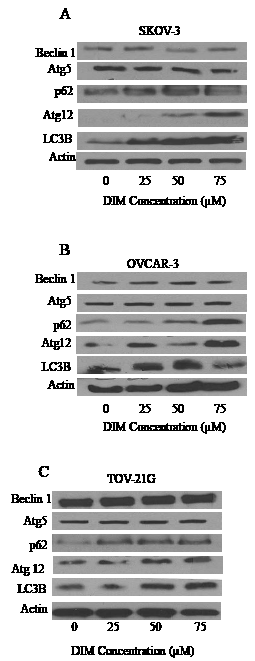 DIM increases the expression of LC3B.