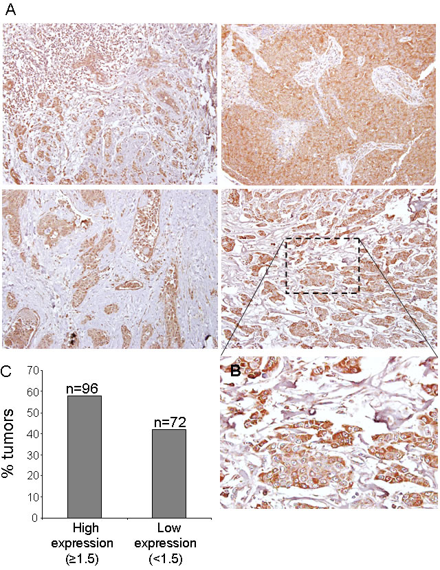 CK1ε expression in human mammary tumors.
