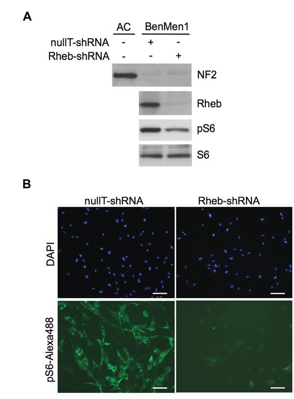 Constitutive mTORC1 activation in NF2-deficient meningioma cells is Rheb-dependent.
