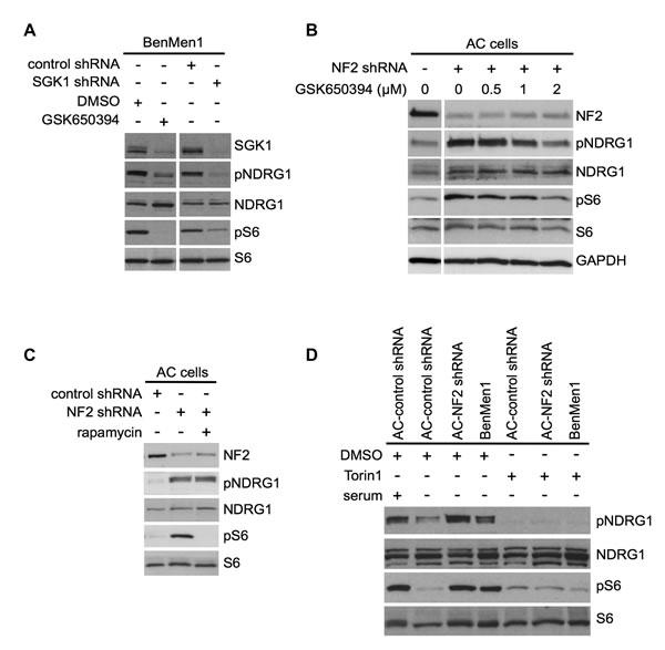 SGK1 regulates mTORC1 signaling in an mTORC2-dependent manner.
