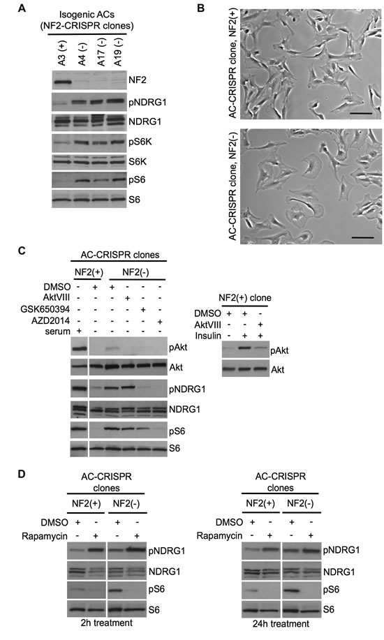 Inactivation of NF2 using CRISPR-Cas9 genome editing in human arachnoidal cells recapitulates enlarged cell morphology and signaling signatures of NF2-deficient human meningioma cells.