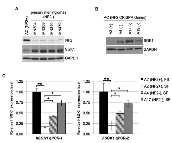 NF2-deficiency leads to increased expression of SGK1.