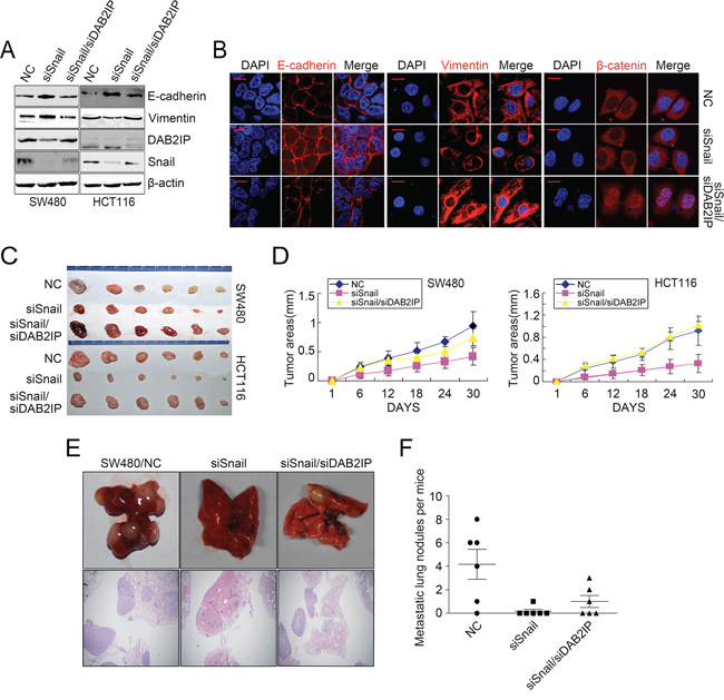 DAB2IP is required for Snail-induced proliferation, invasion, EMT and metastasis.