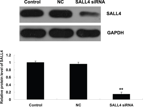 Western blot was conducted to determine the protein level of SALL4 in ICC-9810 cells transfected with SALL4 siRNA or non-specific siRNA as negative control (NC). GAPDH was used as loading control. Non-transfected ICC-9810 cells were used as Control. **P < 0.01 vs. Control.