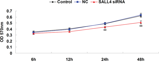 MTT assay was conducted to determine the cell proliferating capacity of ICC-9810 cells transfected with SALL4 siRNA or non-specific siRNA as negative control (NC). Non-transfected ICC-9810 cells were used as Control. **P < 0.01 vs. Control.