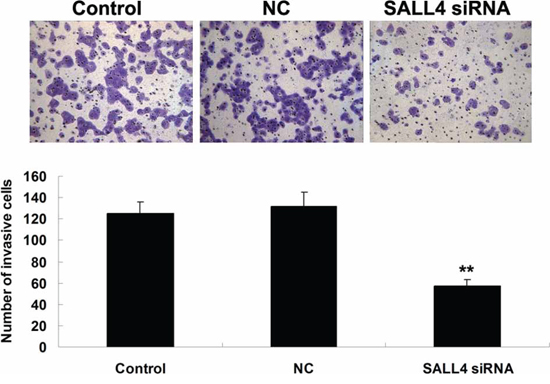 Transwell assay was conducted to determine the cell invasive capacity of ICC-9810 cells transfected with SALL4 siRNA or non-specific siRNA as negative control (NC). Non-transfected ICC-9810 cells were used as Control. **P < 0.01 vs. Control.