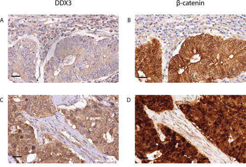 High DDX3 expression is associated with nuclear β-catenin in colorectal cancer samples.