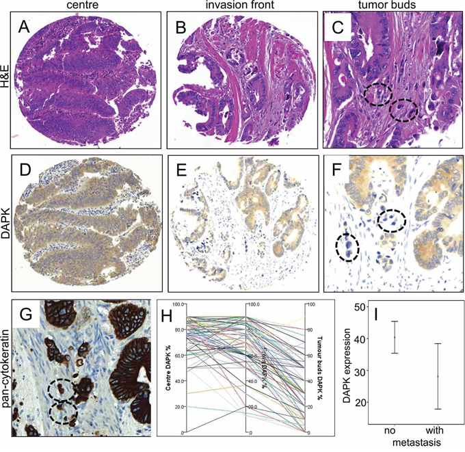 Immunohistochemical staining of DAPK protein expression in tumors of colorectal cancer patients.