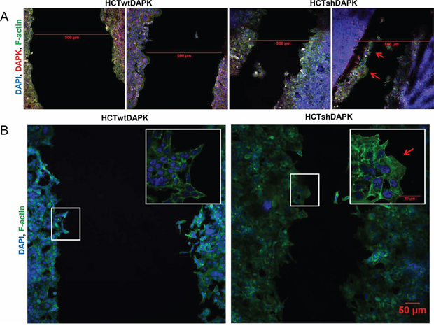 Confocal immunofluorescence images in wound healing migration assay for HCTshDAPK and HCTwtDAPK cells.