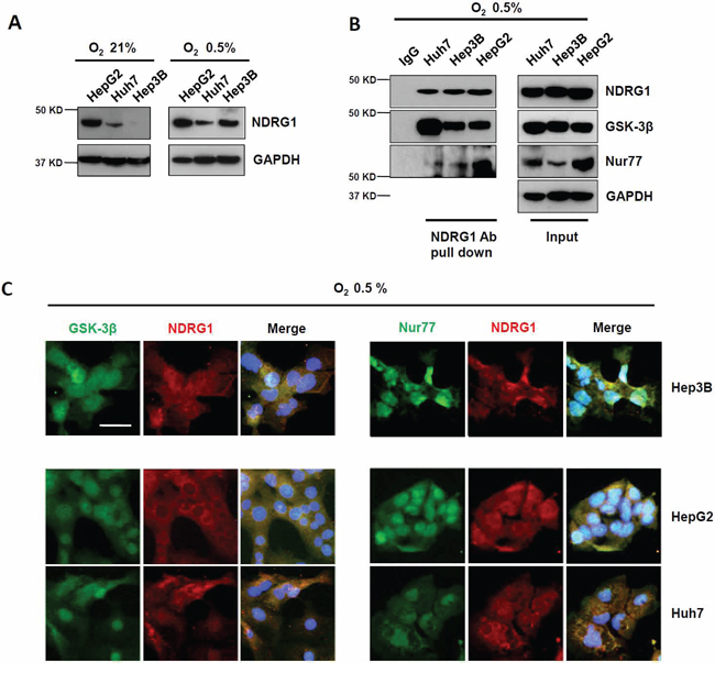 Hypoxia-inducible NDRG1 expression and its interactions with GSK-3β and Nur77 in HCC cells.