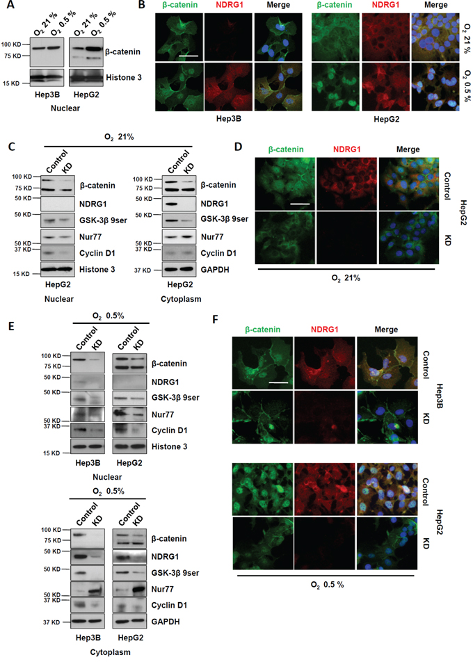 Suppression of NDRG1 by siRNA prevented β-catenin nuclear accumulation in HCC cells.