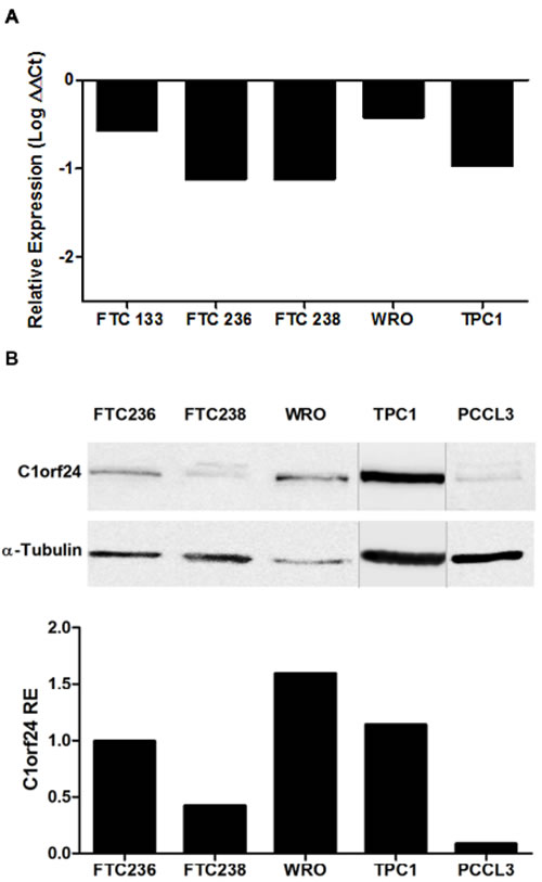 Endogenous expression of miR-106b and C1orf24 in thyroid carcinoma cell lines.