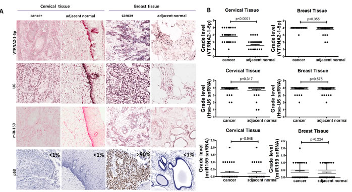 Comparison of VTRNA2-1-5p expression in cervical cancer tissue with inactivated p53 and in breast cancer tissue with mutated p53.