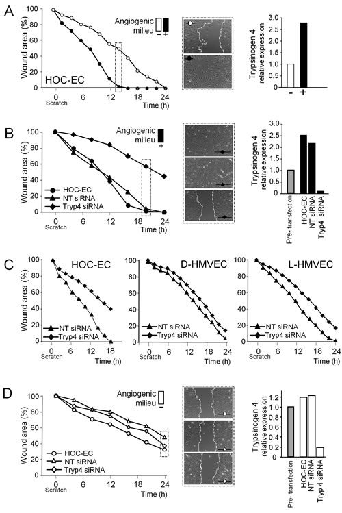 Effect of trypsinogen 4 silencing on the migration ability of tumor endothelial cells.