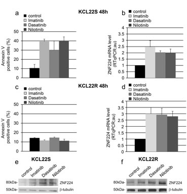 Effects of imatinib and second-generation TKIs on ZNF224 expression in KCL22 CML cell lines.
