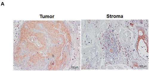 Stromal S100A9 expression in monocytes promotes the migration and invasion of co-cultured oral cancer cells.