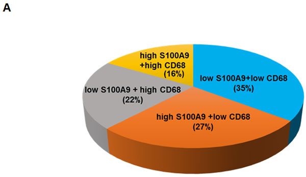 Concomitant high S100A9 with high CD68 protein expression in tumor stroma reduced recurrence-free survival among early-stage oral cancer patients.