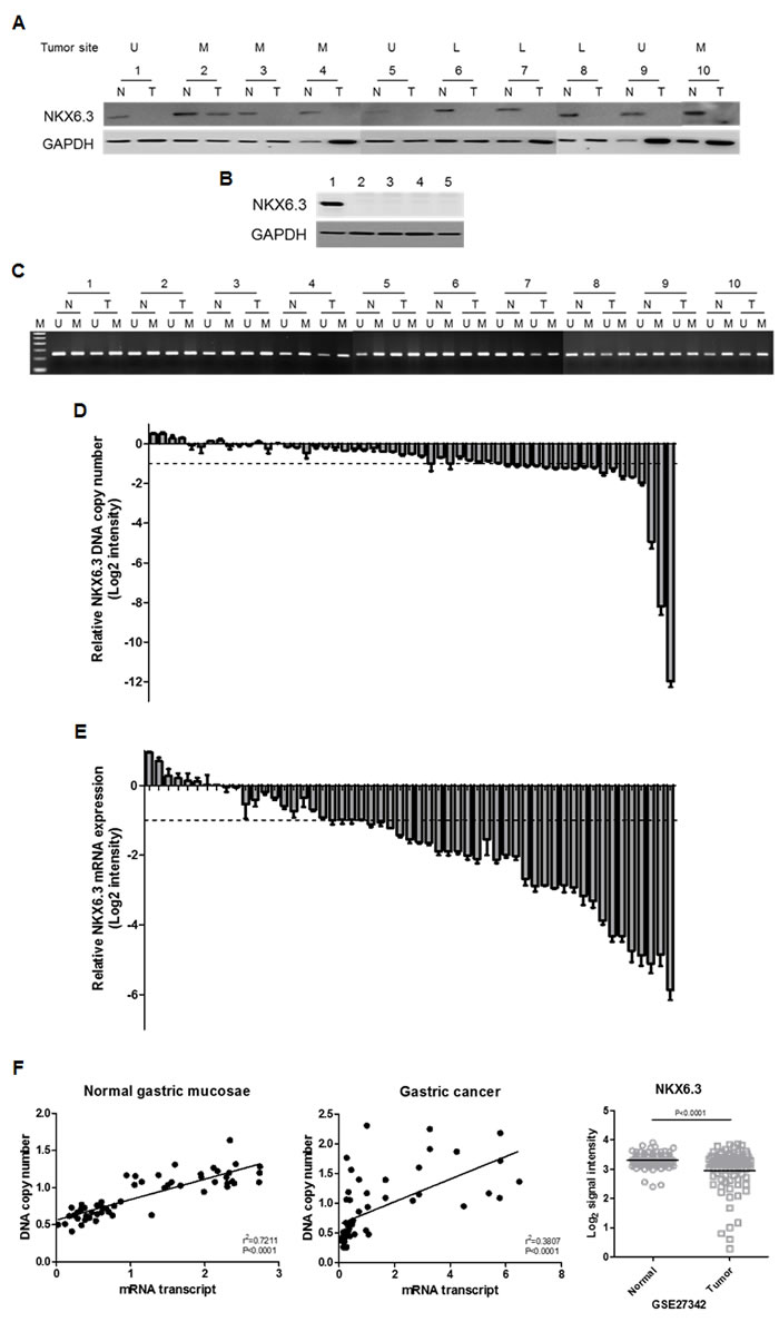 The NKX6.3 expression in gastric cancer cell lines and tissues.